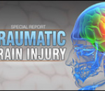 Traumatic Brain Injury Treatment, Research Pay Off